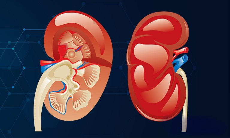 New Study Strongly Links COVID-19 to Acute Kidney Injury - AKI