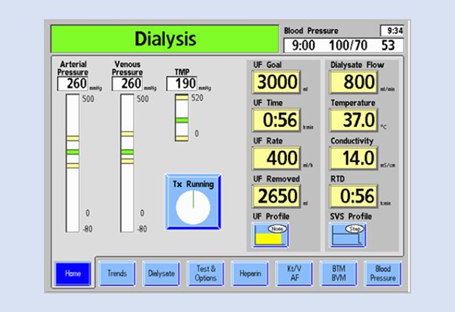 2008T Hemodialysis Machine | FMCNA